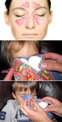 Как греть нос яйцом